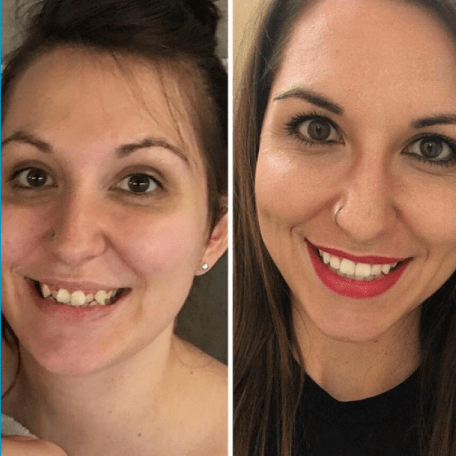 Invisalign Before and After 1